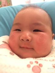 我女儿脸上太阳晒伤了怎么办