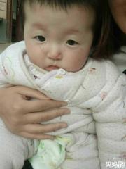 六个月宝宝发烧之后脸发白