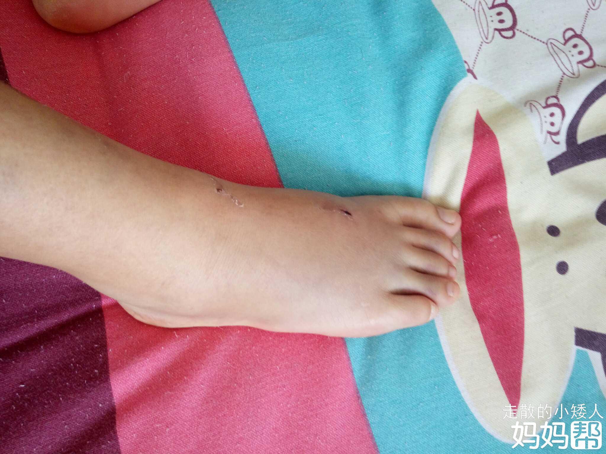 夏天脚肿是什么原因 夏季久坐脚肿了怎么办 - 爱秀美