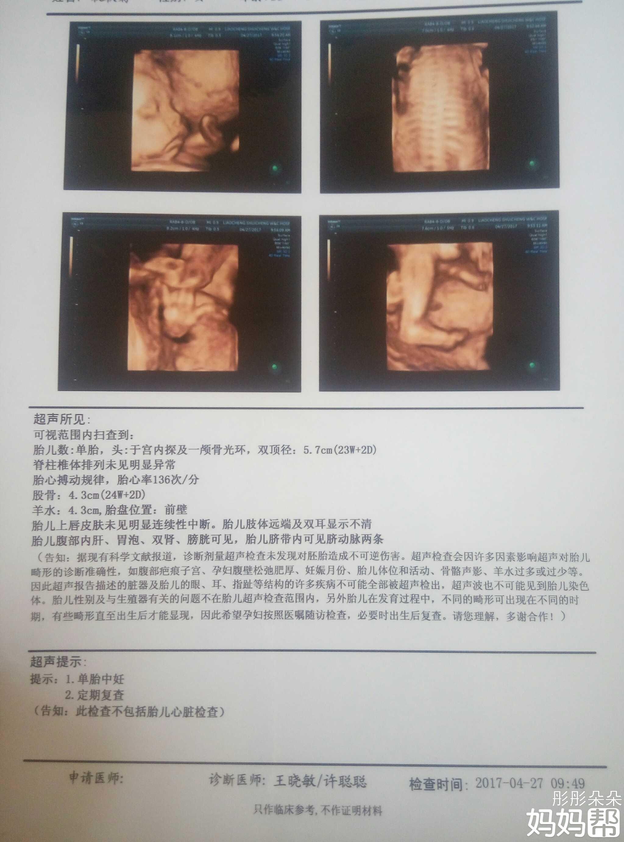24周做四维彩超鉴别男女准确率高吗 快速问医生 免费咨询图片