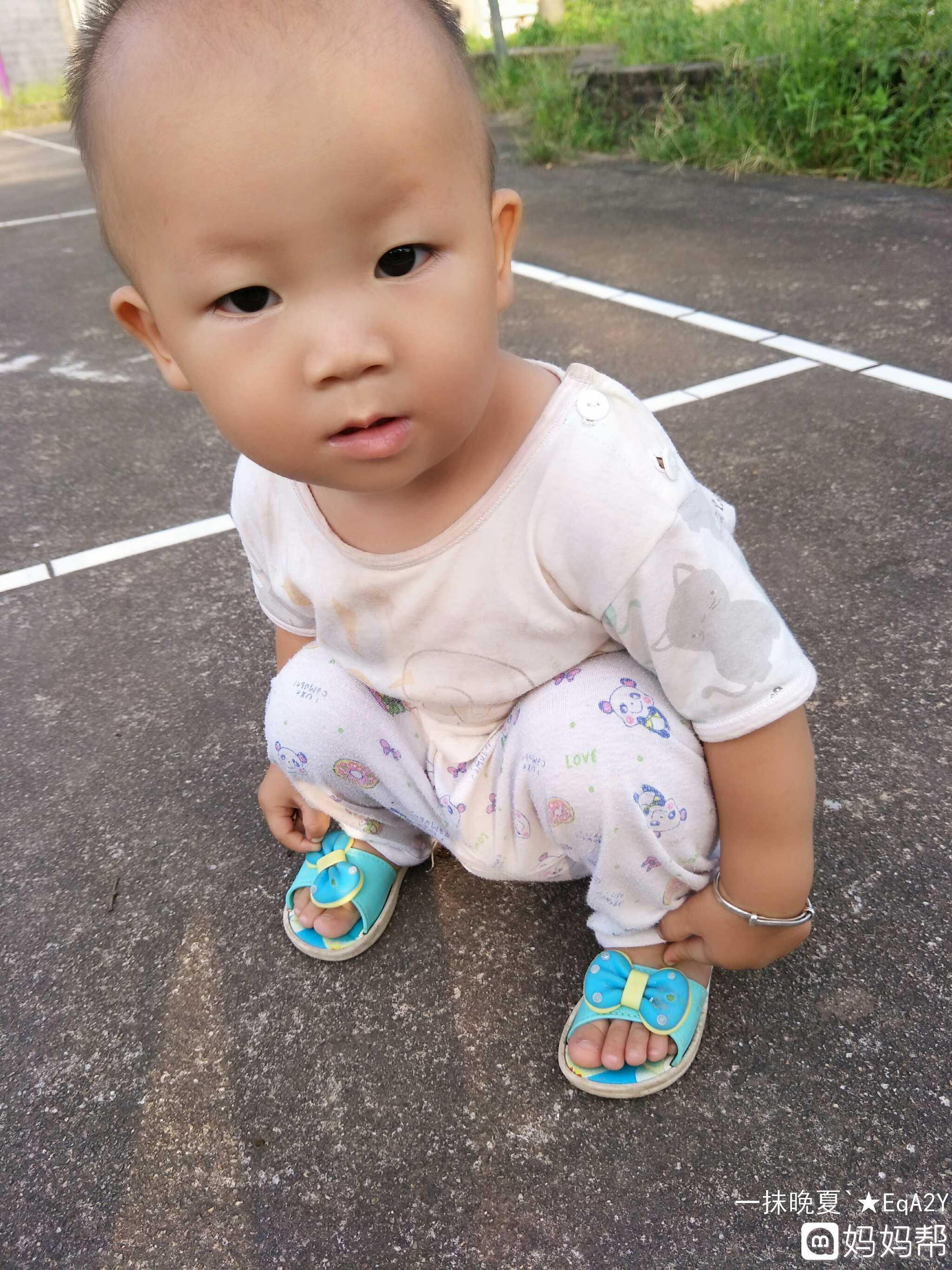 一岁宝宝贫血缺钙都有点严重 该吃什么补呢 求