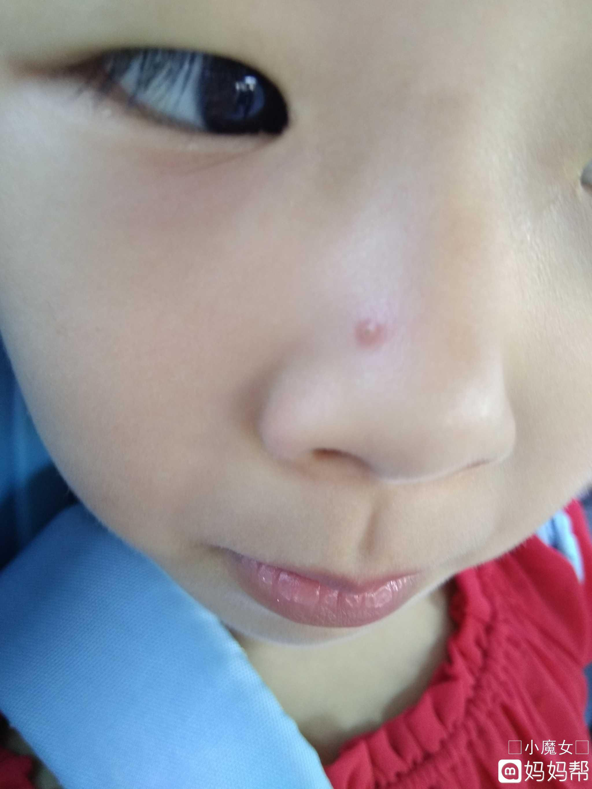小孩鼻子上苍蝇图片