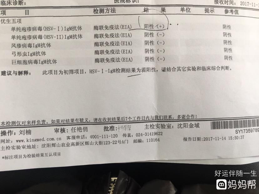 病毒五项检查_eb病毒 检查_检查乙肝病毒