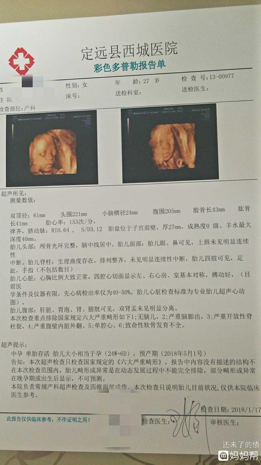 六个月了,四维检查胎儿左心室有2MM强光点和