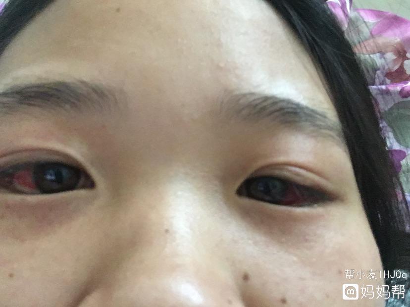 急,生孩子时用力过度,眼睛和脸上毛细血管破裂
