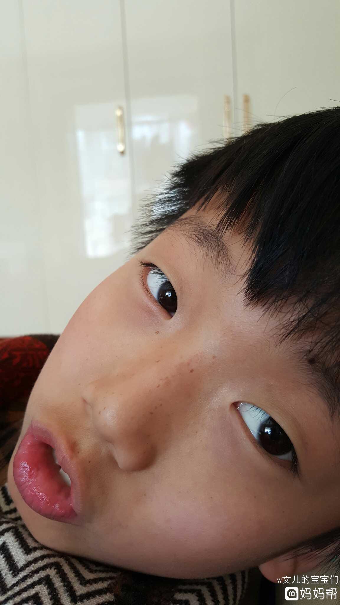 十岁男孩鼻子长斑