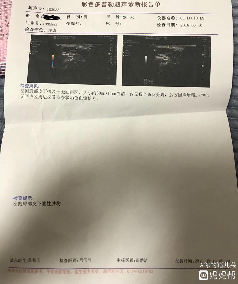 颈部皮下囊肿手术图片