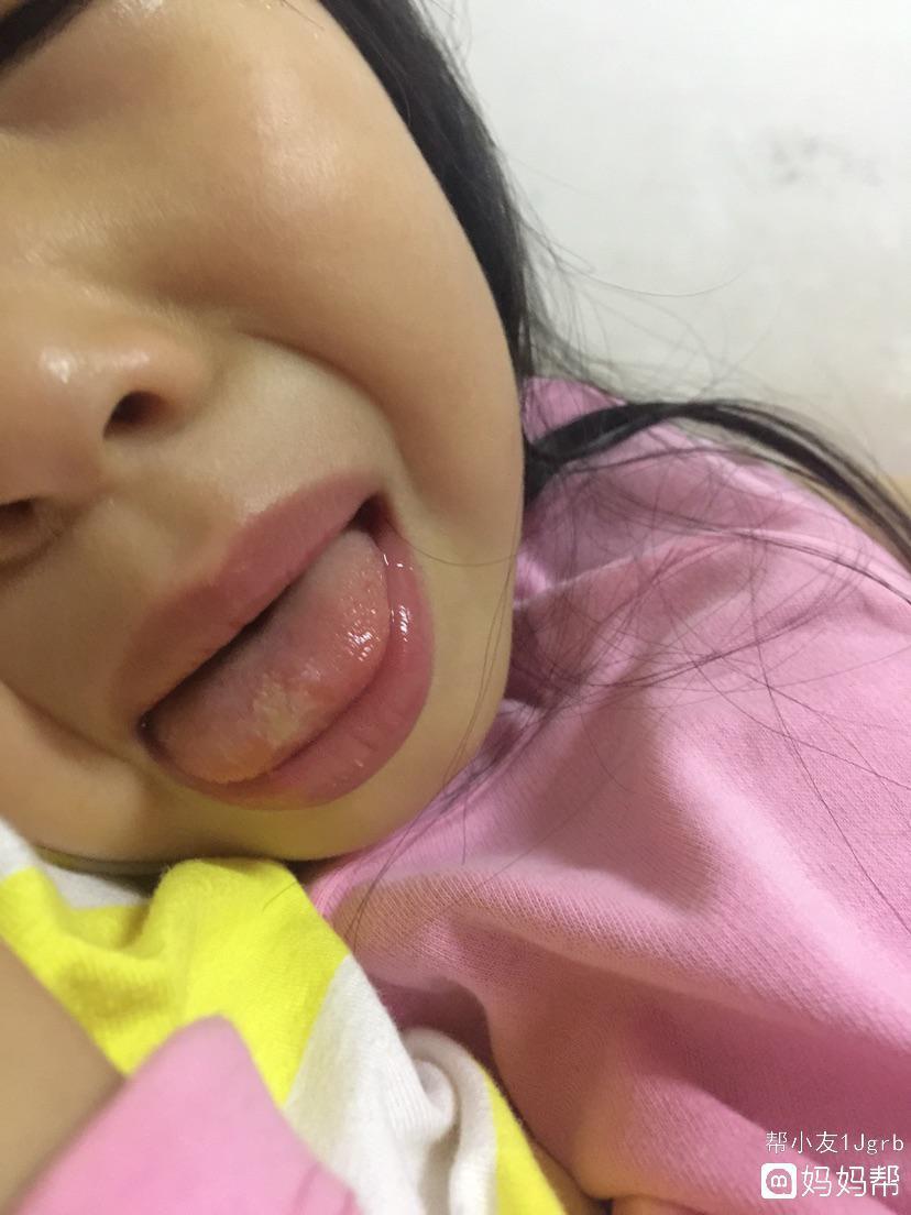 求小孩舌头溃疡的根治的方法
