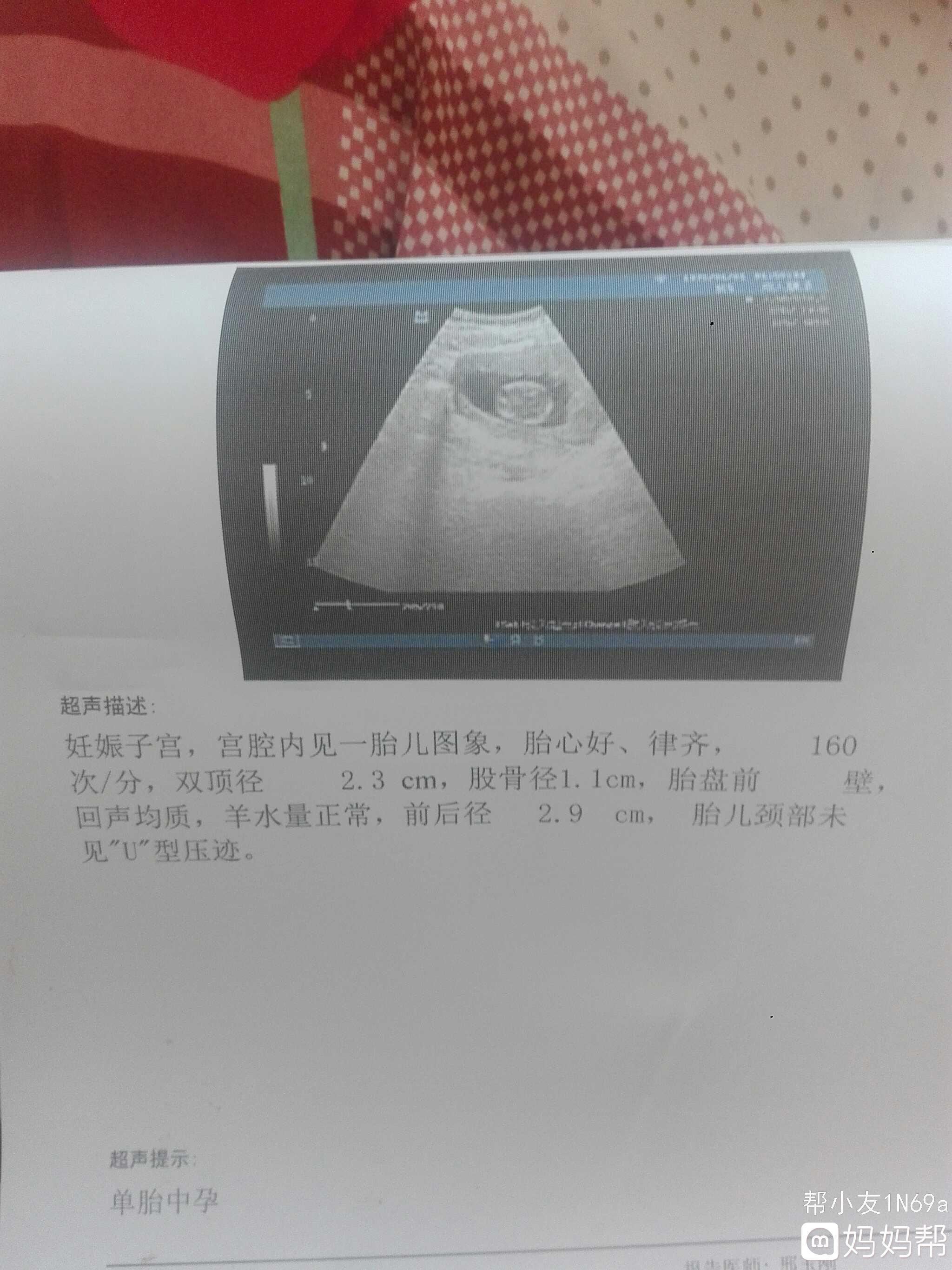 六个月男宝彩超�_三个月b超单,查了两次如愿以偿是男宝,快-2019年6月出生帮
