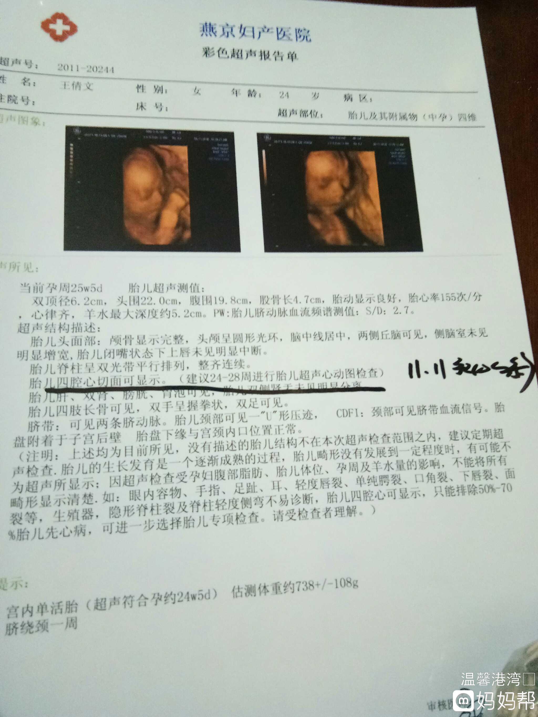 四维彩超检查胎儿四腔心切面可显示什么意思