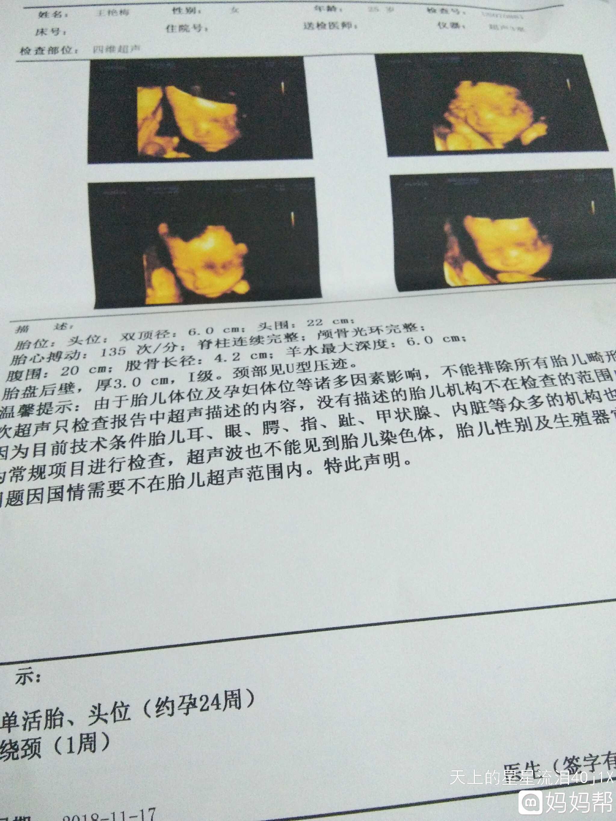失踪这一胎是个女孩,女生是老大15个月了uiuc希望男孩图片