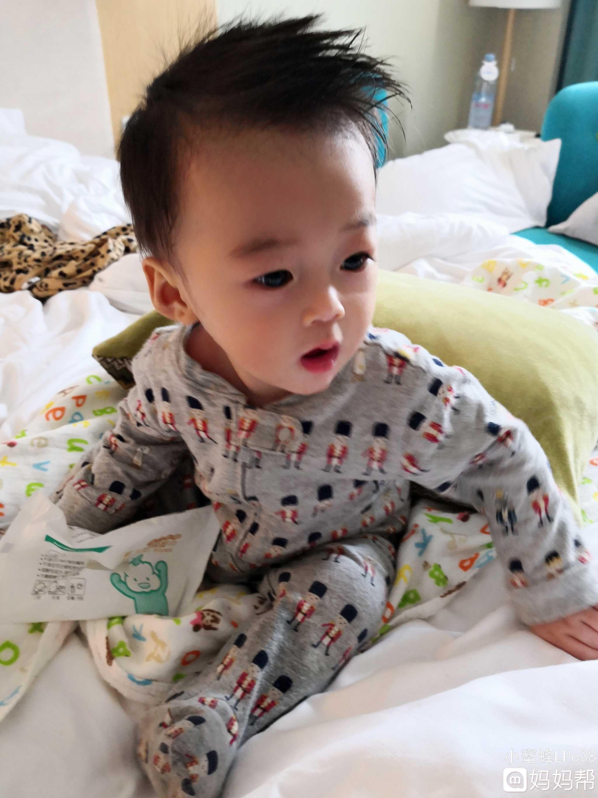 四个月宝宝大腿有红疹