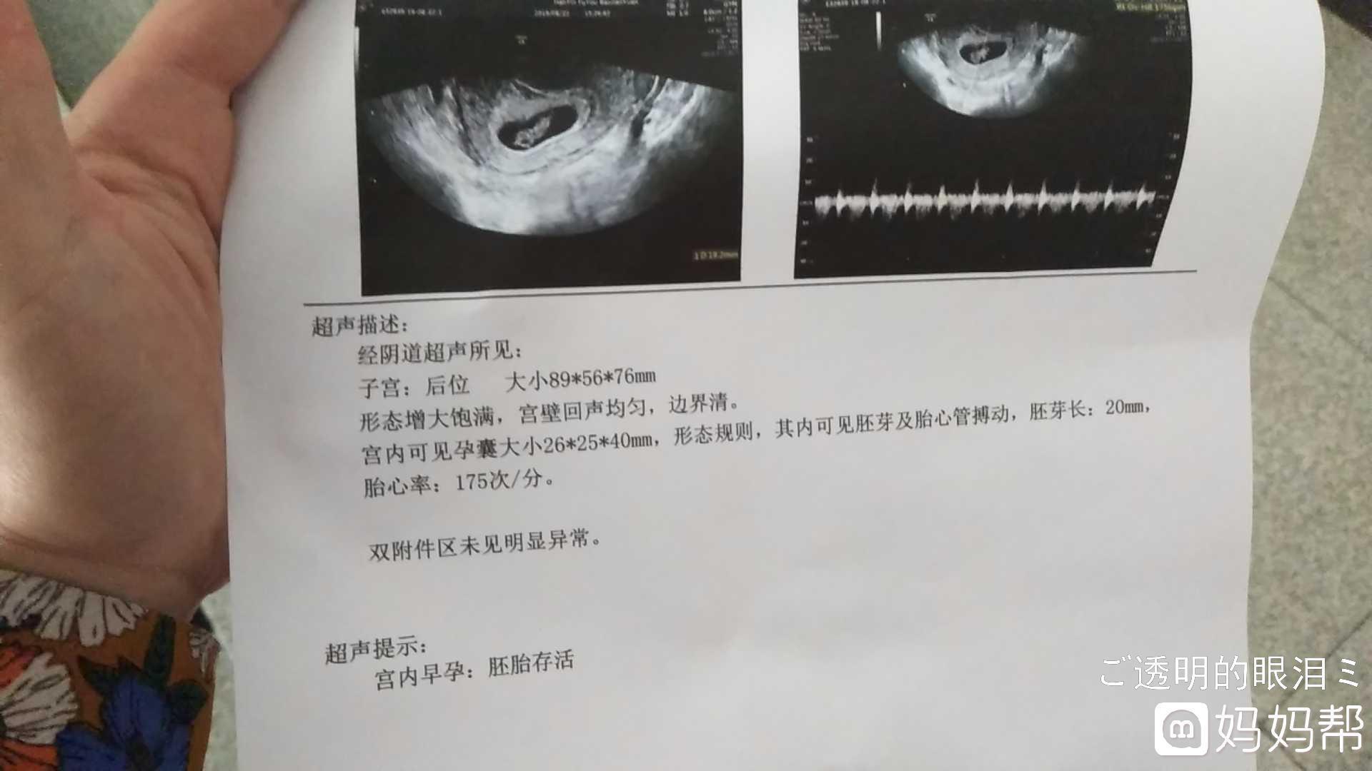 怀孕5周孕囊大小图片