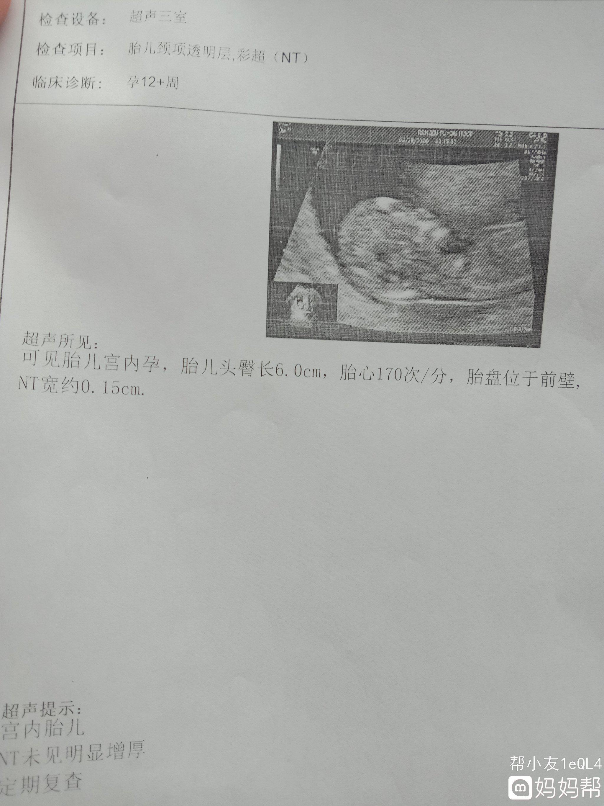 医生说好像是男孩准吗 怀孕三个月男孩的征兆